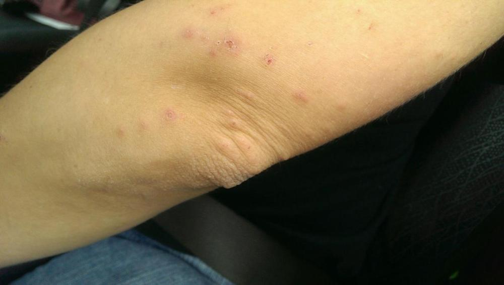 Bites on arm from San Fransisco Airport
