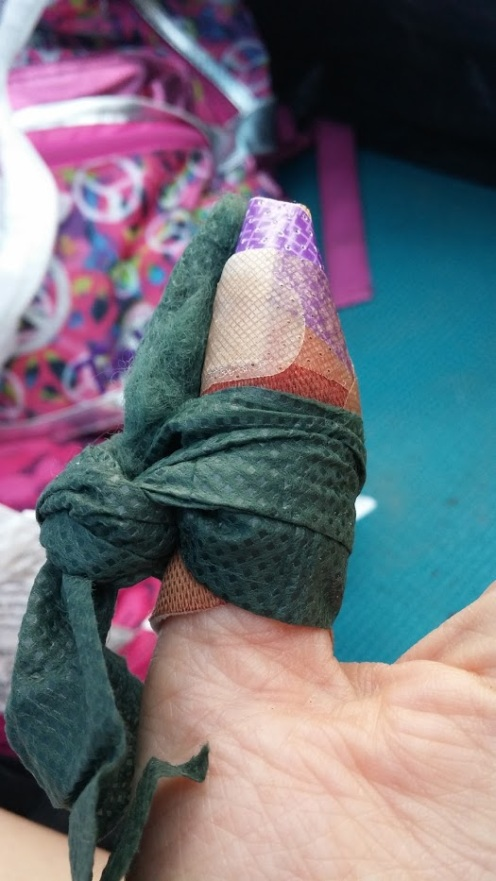 Cut my finger at Petit Jean State Park