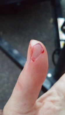 Cut my finger at Petit Jean State Park