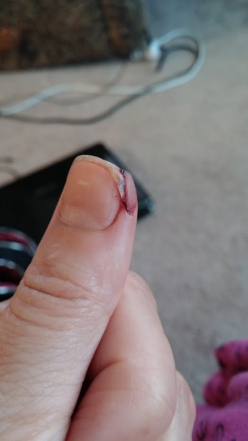 Cut thumb - day 4